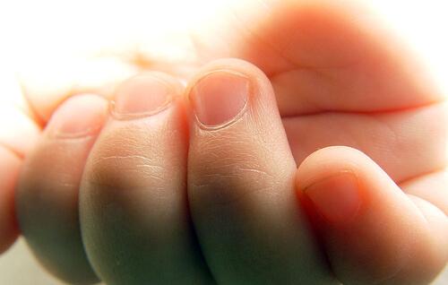 爪の甘皮を処理してもすぐできる人、原因は内臓の疲れ