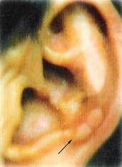 耳-数珠状隆起