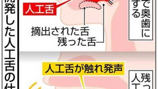 発声可能にする人工舌開発 がん患者に朗報、岡山大 鍼灸でも舌は重要です。