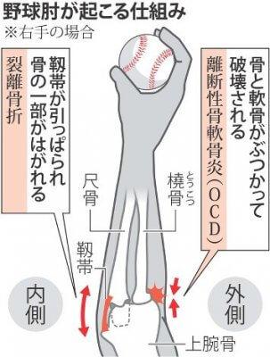 野球肘 引用