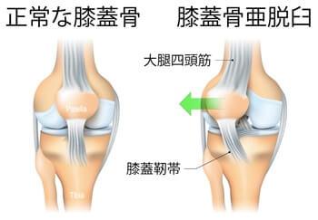 膝蓋骨亜脱臼 引用
