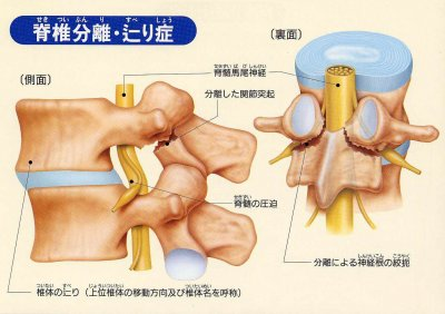 腰椎分離症 引用