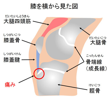 骨端線 引用