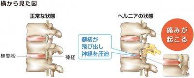 椎間板ヘルニア 引用