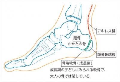 踵骨骨端症(しょうこつこったんしょう)やシーバー病  引用