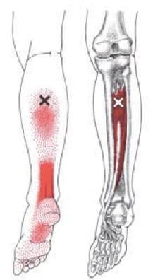 後脛骨筋トリガーポイント