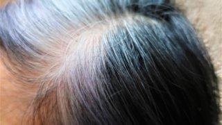 白髪は抜くべきか抜かぬべきか、中医学から診る3つの分類分け