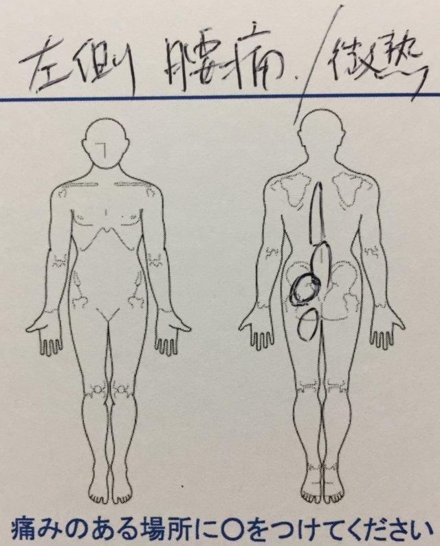 左側の腰痛