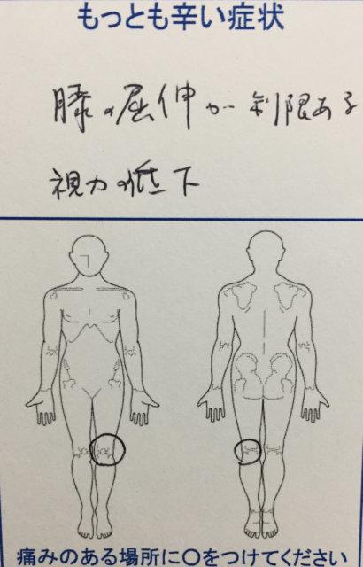 左膝の痛み