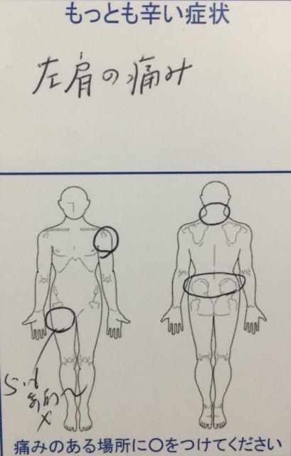 左肩痛の整体治療的な診断