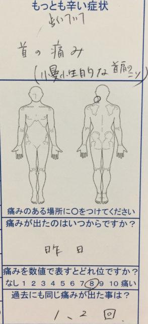 寝違え(首の痛み)で慢性的な首肩のこりを整体+鍼灸治療で劇的に改善した20代女性の一症例