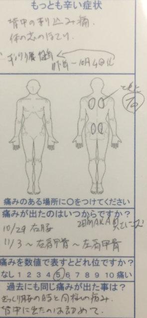 ぎっくり背中になりぎっくり腰と同様の刺し込み痛、他院で治らず整体鍼灸で改善した一症例