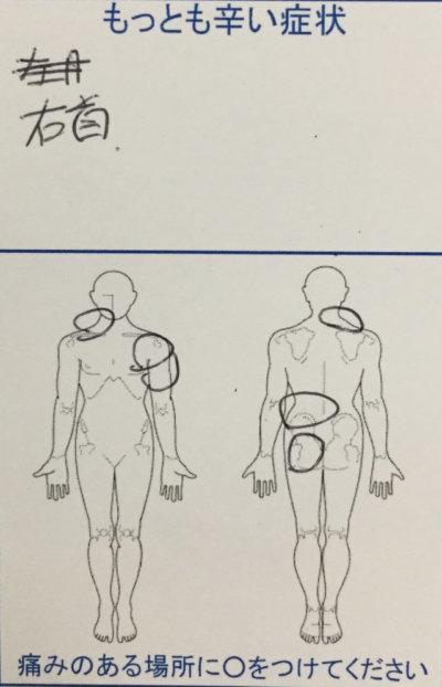 右首・左肩・左腰~おしりの痛みがスポーツをするとすぐ痛む女性40代の一症例