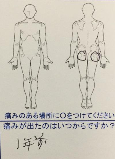 整骨院で腰痛が治らない60代男性【1年前からの慢性的な腰痛】整体鍼灸で改善した一症例
