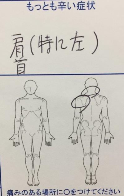 左肩こりが1年ほど辛く整体鍼灸治療で改善した一症例