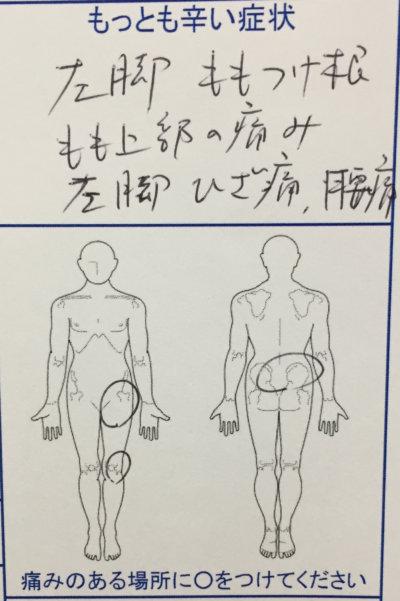 左足を襲った激痛(もも付け根、もも上部、膝痛)と腰痛で来院された50代女性の一症例