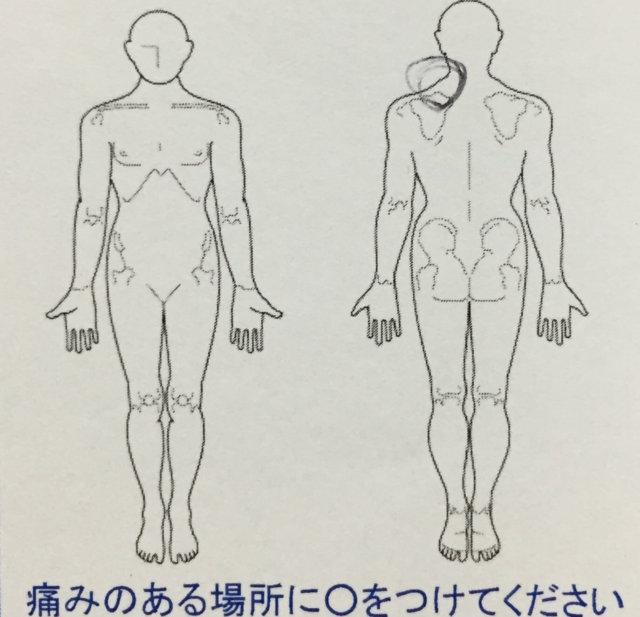 育児中のママ、子供の抱っこで左首肩が鋭く痛む一症例
