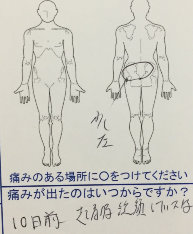 朝起きて洗顔中に腰が痛くなり10日経っても治らない腰痛の一症例