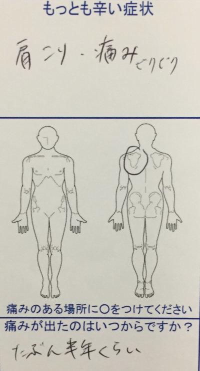 半年前から続く左肩こりでピリピリした痛みがあった20代女性の一症例