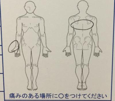 右手首の痛み【手術しないと完治しないと言われた】整体鍼灸治療で治った40代女性の1症例