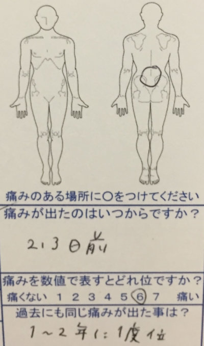 1~2年に一度のぎっくり腰寸前で来院された40代女性の一症例