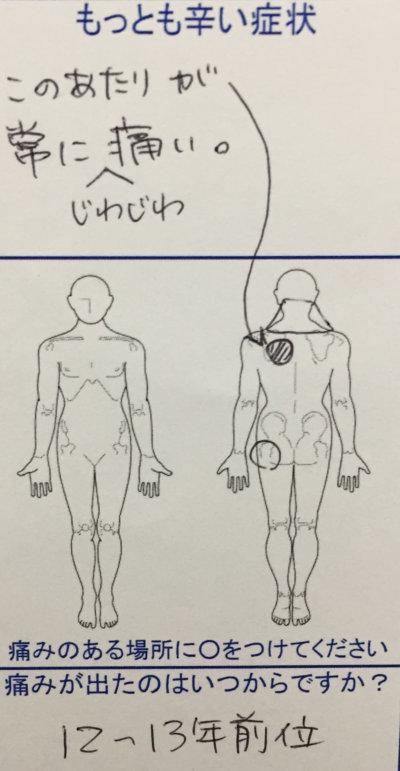 左肩甲骨内側の痛み【職業:アニメーター】10数年常にジワジワ痛む女性の1症例