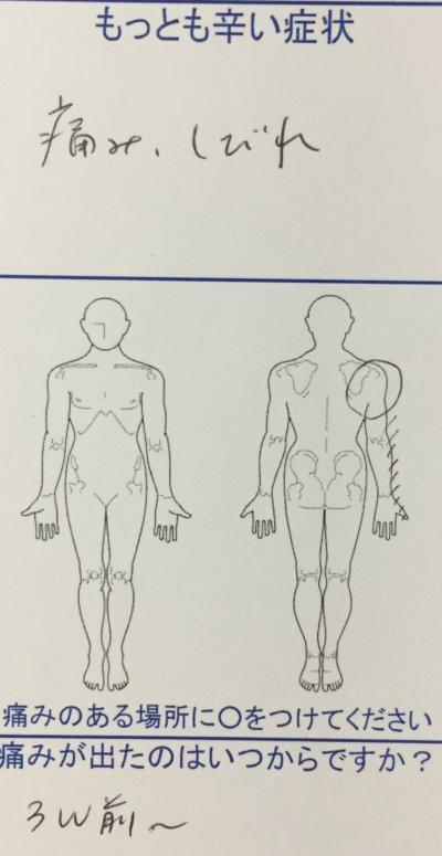 右肩から腕の痛みとしびれ【3週間前から】で来院された40代男性の一症例