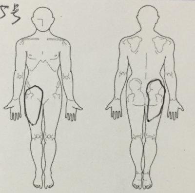 腰痛で整形外科受診→L5ヘルニアと言われた30代男性が改善した一症例