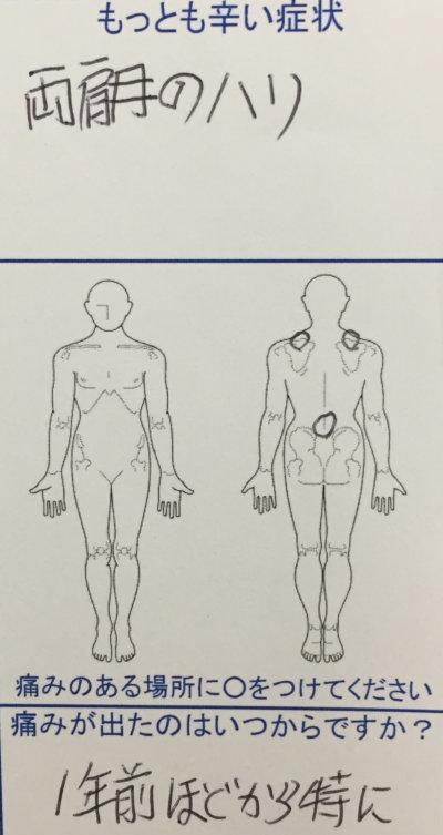 両肩のハリと両腕(肘から手先にかけてのしびれ)【介護職】で緊張状態が多く力を抜けなかった一症例