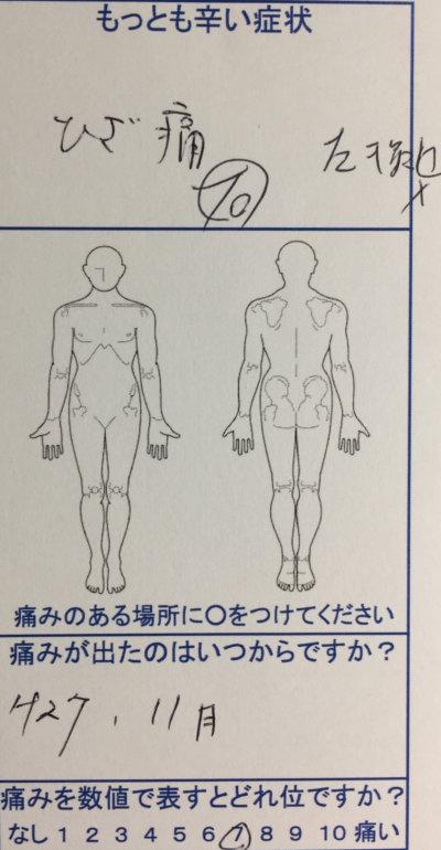 【整形外科で変形性ひざ関節症と診断】2年間注射を続けるが改善しなかった膝痛から開放された一症例