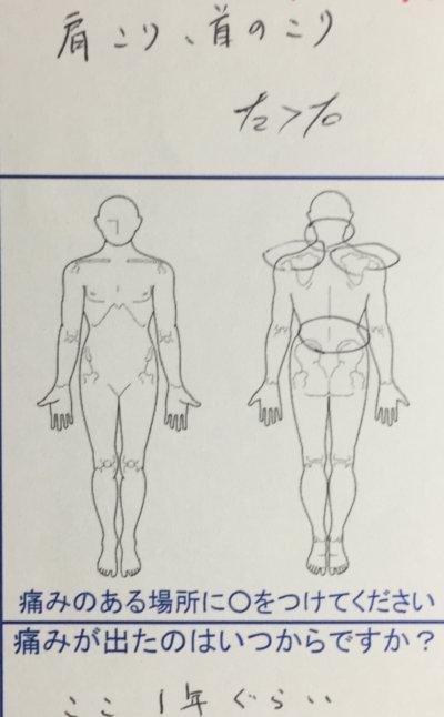 ここ1年くらい肩こり腰痛に悩んでいた20代男性の一症例
