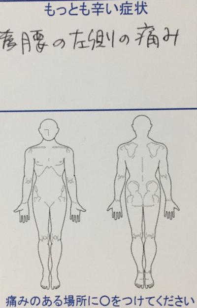 腰の左側の痛み【立ち上がる時、歩く時】を整体と鍼同時治療で改善した1症例
