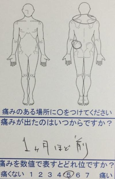 バレーボールで腰が痛い【歩いたり座ったりが辛い】整体治療でよくなった1症例