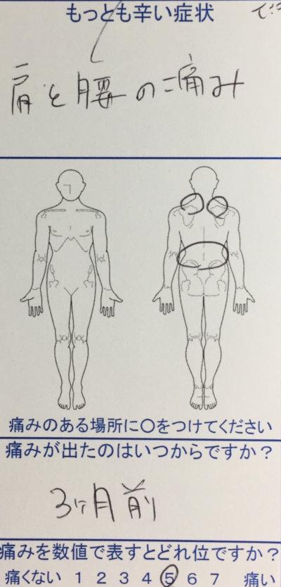 システムエンジニア男性【肩と腰の痛み】3ヶ月前から急に痛み鍼灸治療で来院された1症例