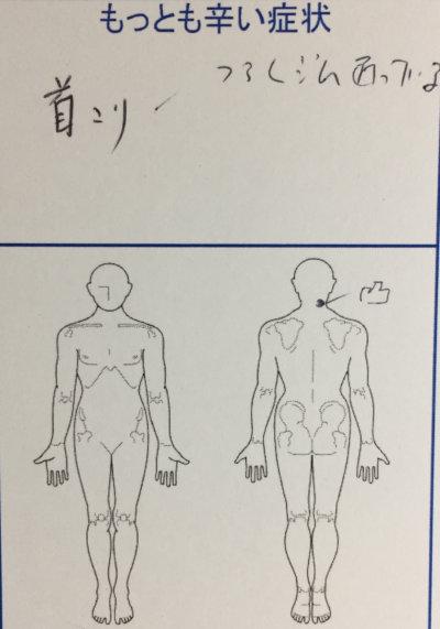 首肩の慢性的な凝り【頭痛や腕のしびれあり】30代男性の1症例