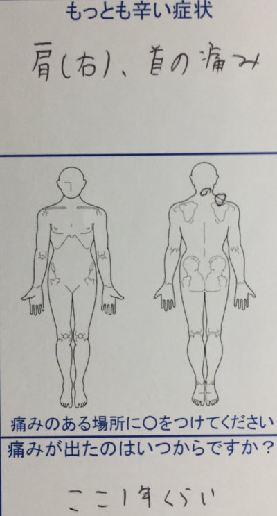 脱臼のクセで肩こり首の痛み【20代男性】他院で2,3日しか持たない症状がなくなった1症例