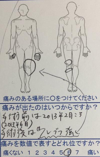 足のこわばりと手のしびれ【手術後の後遺症】力が入り、足のつっぱり感が薄れた1症例