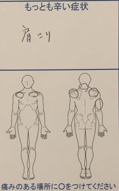 肩がコリすぎて右腕しびれ【荷物も持てない】治療で改善した40代女性の1症例