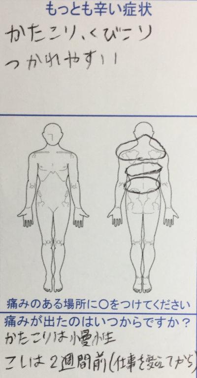 肩こり首コリ(慢性的)があり疲れやすく【2週間前から腰痛】30代女性の整体鍼灸治療の1症例