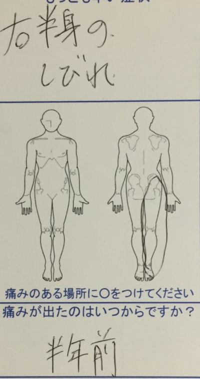 脚のしびれがきつく我慢できない【疼痛回避姿勢】ヘルニアで来院した30代男性の1症例