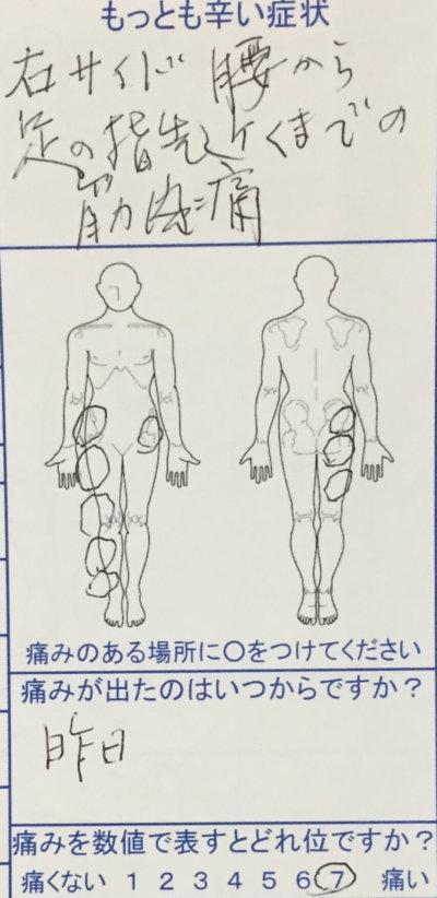 突然の右ふとももから腰にかけての激痛で歩けなくなった80代女性の1症例