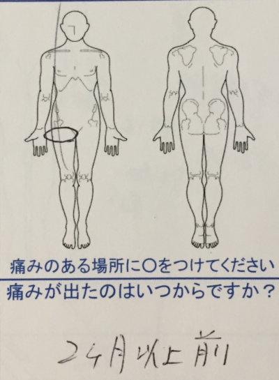 右足のつけ根の神経が痛い【2ヶ月前から】整体鍼灸治療で改善した1症例