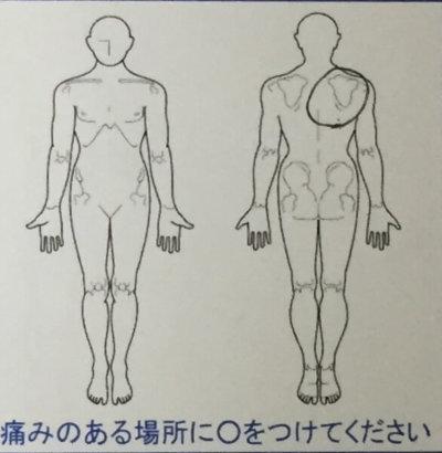 3日前から肩から肩甲骨が凝って痛い【20代男性】整体治療で改善した1症例