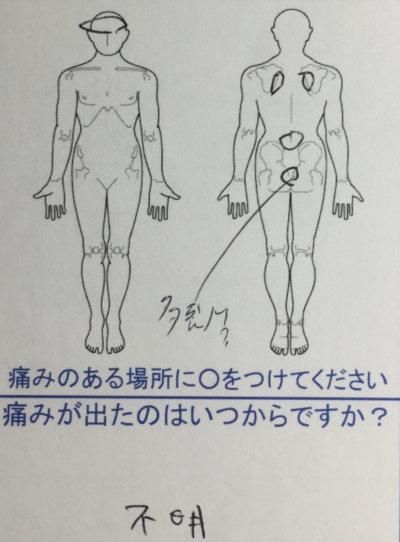 ずっと背中が痛く頭痛もある【姿勢が良すぎる】30代男性の1症例