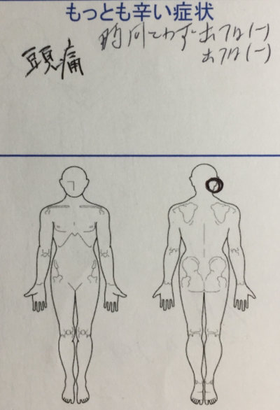 頭痛が辛い【元々首腰肩の痛みあり】整体鍼灸治療で改善した1症例