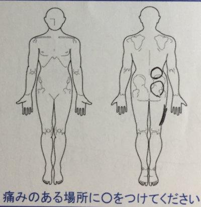 右足とお尻から腰が痛い【昨日から突然】40代女性、整体鍼灸治療で改善した1症例