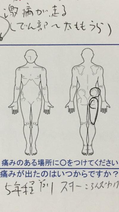 お尻からふともも裏の激痛【姿勢を変える時】5年も続く激痛が整体鍼灸治療で改善した1症例