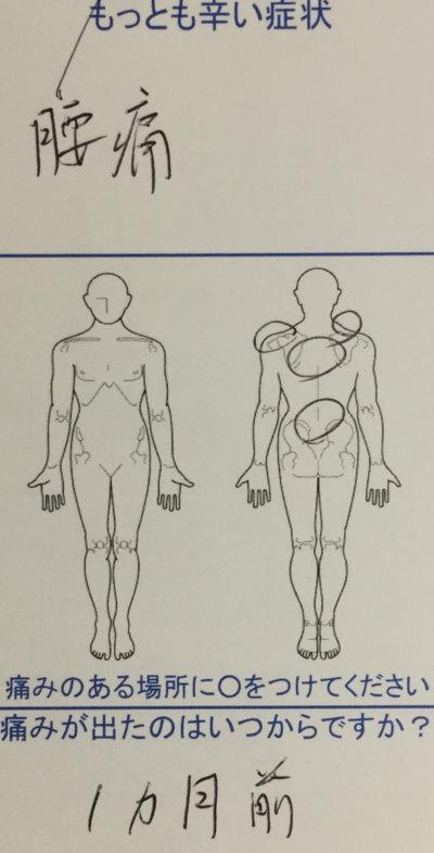 時々激痛が走る腰痛と首痛【1ヶ月前から】50代男性の1症例