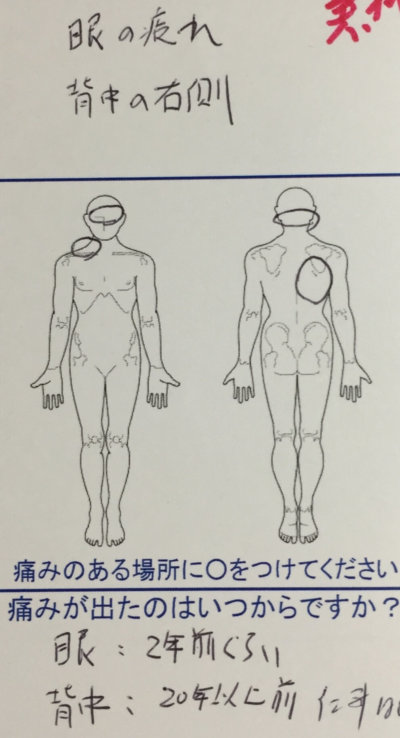眼の疲れや背中右側の痛み【サッカーで傷めた古傷が原因】バランスを改善していった1症例
