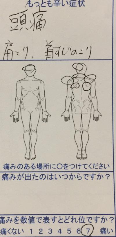 頭痛に悩む中学生男子【小学5年から】薬が効かない症状が改善した1症例